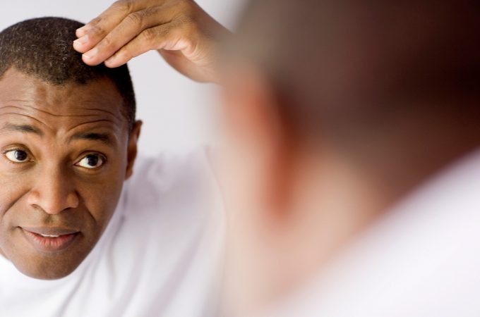 Battle Hair Loss Problems with The Right Solution