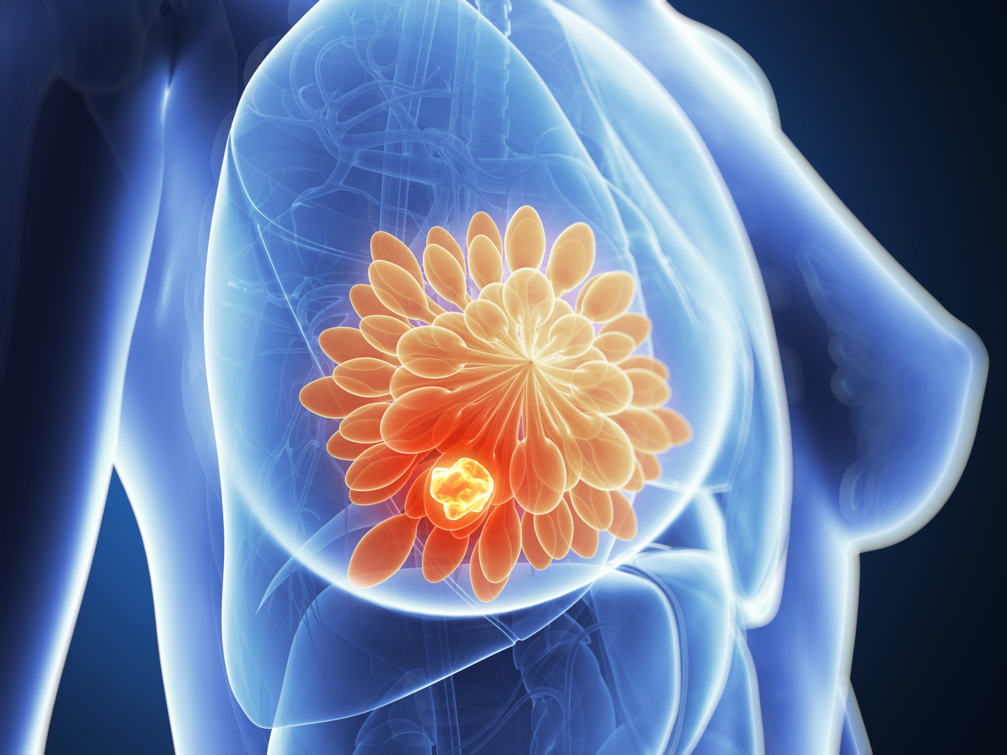 Breast Cancer in Women