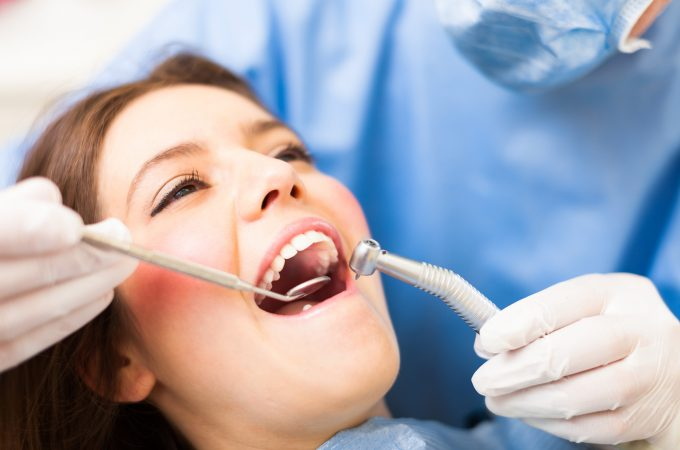 Excel Household Dental – Sealing Out Tooth Decay