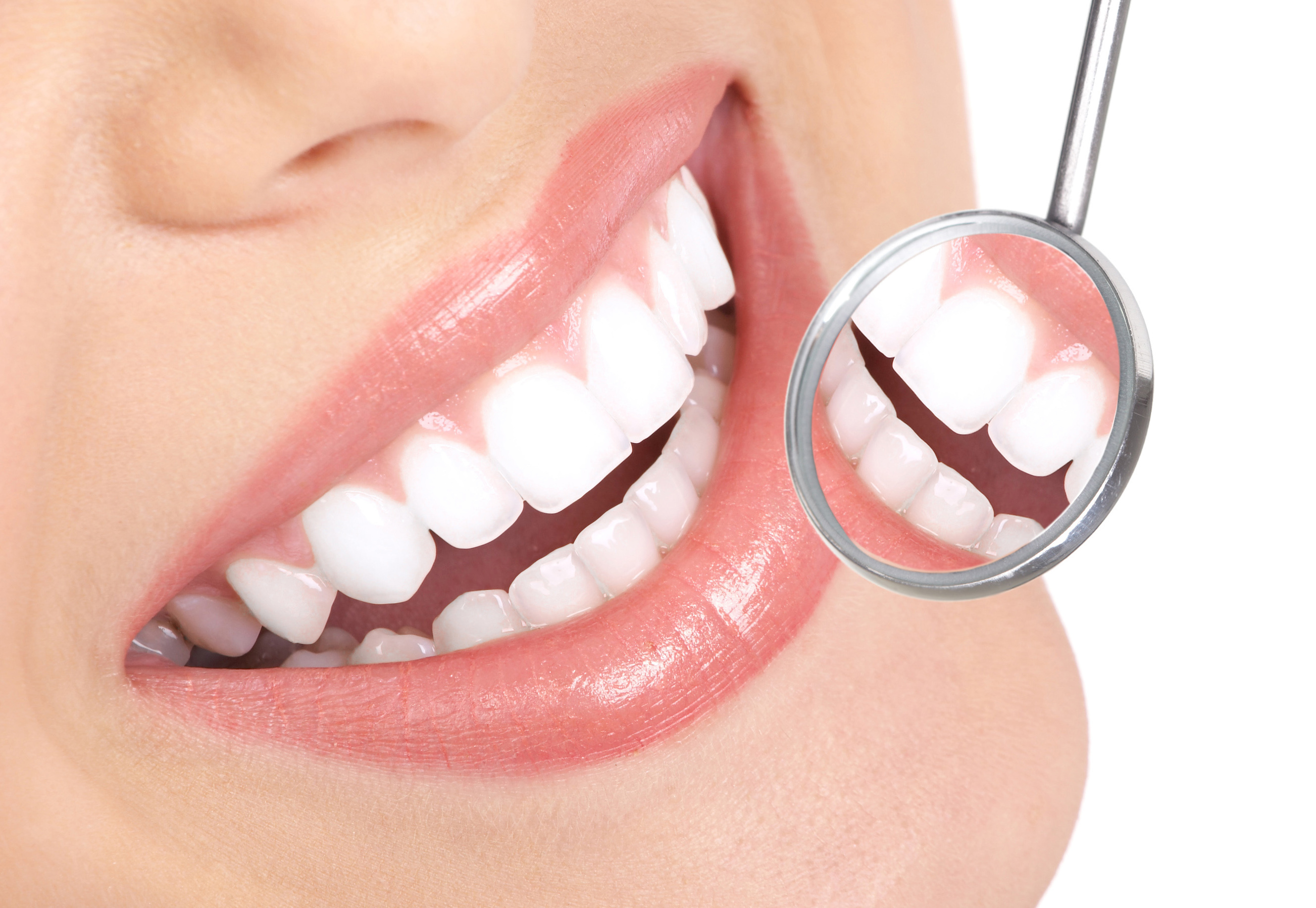 Tooth Bonding Benefits for the Dental Health