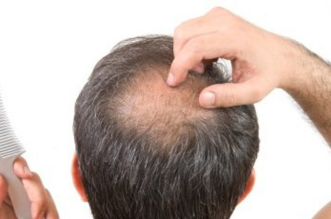 Extreme Hair fall Wants Rapid Consideration And Care