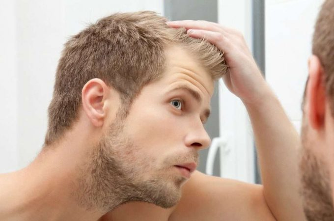Hair Loss Remedy Web site Releases Delicate Video About Most cancers-Associated Hair Loss