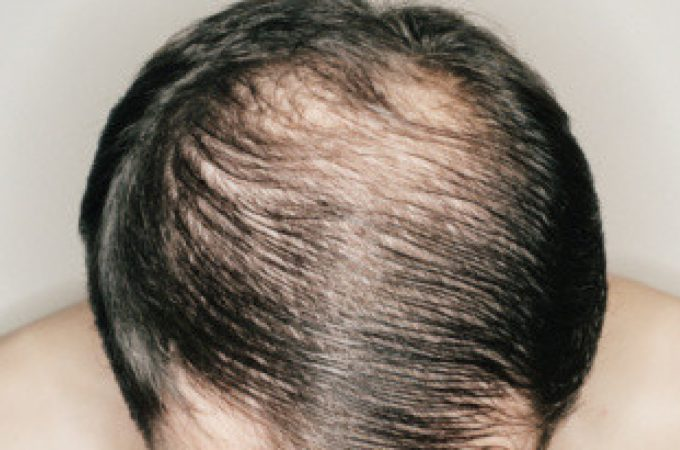 This Is What You Ought to Know About Hair Loss And Weight-reduction plan