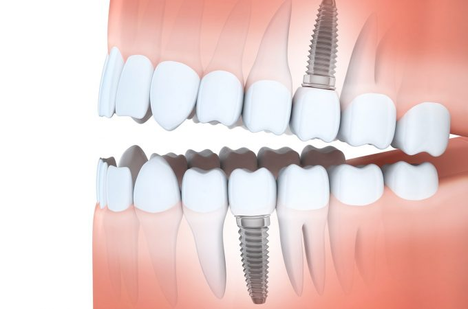 Is A Dental Implant Right For You?