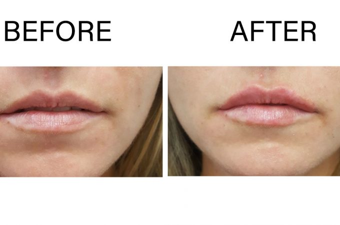Frequently Asked Questions about Lip Injections Toronto