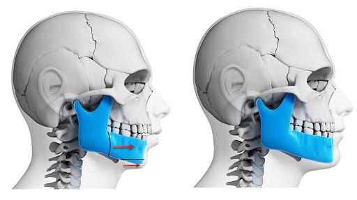 3 Types of Surgery To Correct Jaw Irregularities
