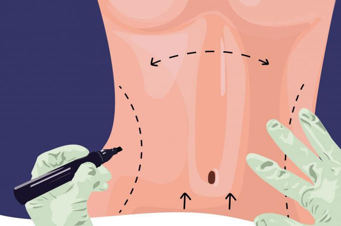 What Are The Benefits Of A Tummy Tuck?