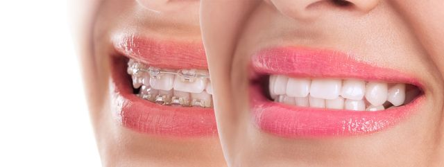 Are Clear Aligners Right For You?