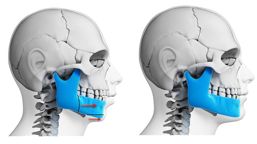 3 Types of Surgery To Correct Jaw Irregularities
